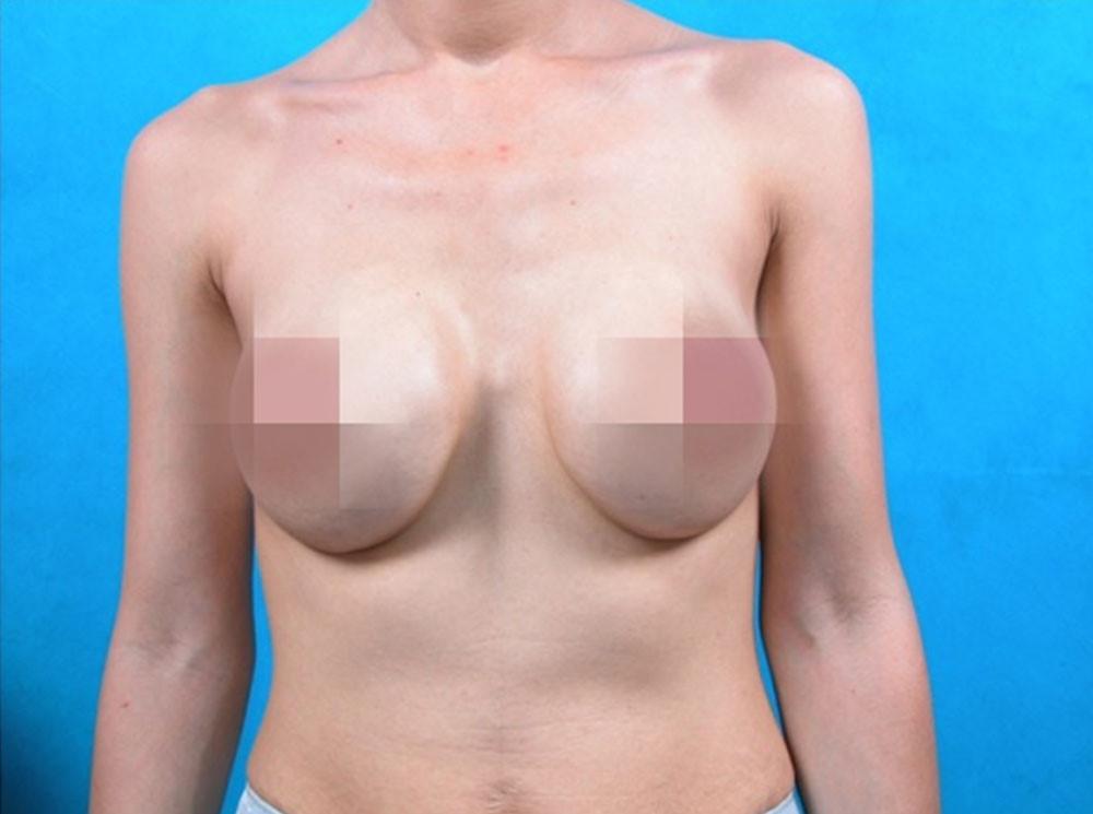 Co thắt bao xơ sau nâng ngực cần xử lý như thế nào