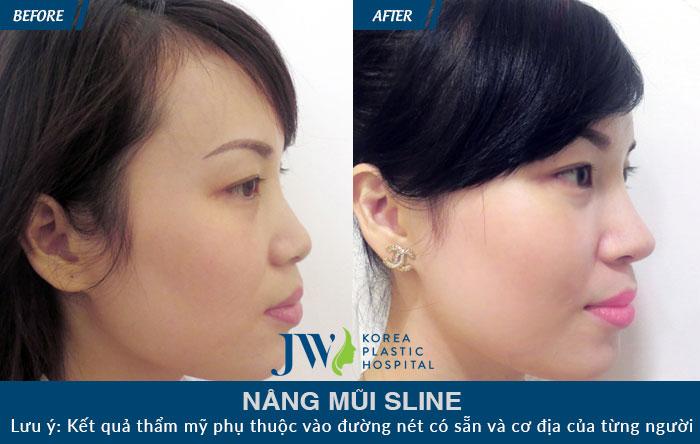 Quy trình thực hiện nâng mũi S Line Tại Bệnh Viện Thẩm Mỹ JW