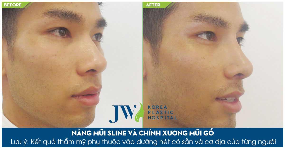 Quy trình thực hiện nâng mũi S Line Tại Bệnh Viện Thẩm mỹ JW Hàn Quốc