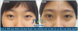 Bấm mí mắt Hàn Quốc_3