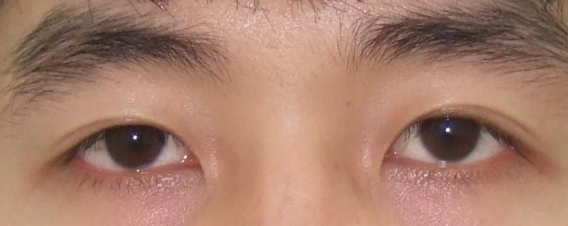 5 biến chứng nghiêm trọng thường gặp khi cắt mắt 2 mí