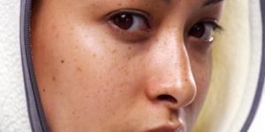 chăm sóc da sau khi đốt tàn nhang