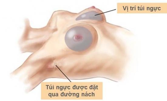 Nâng ngực nội soi có đau không? Trả lời cùng chuyên gia_1