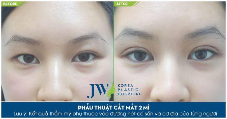 Phẫu thuật cắt mắt 2 mí Hàn Quốc