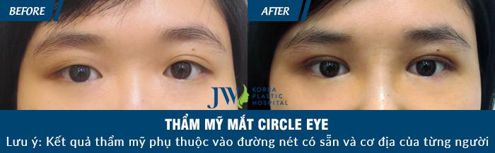 cat-mi-mat-circle-eye-o-dau-5