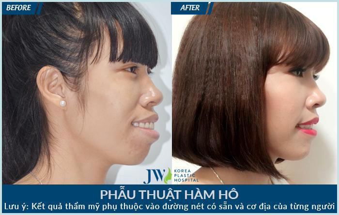 PHAU-THUAT-HAM-HO