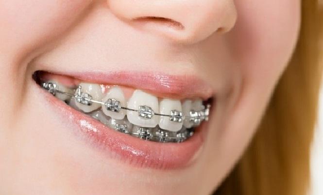Cách làm răng hết hô_4