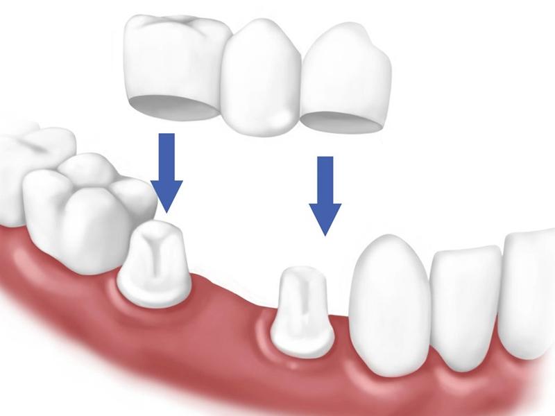 Cách làm răng hết hô_3