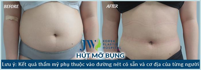 hut-mo-bung-02