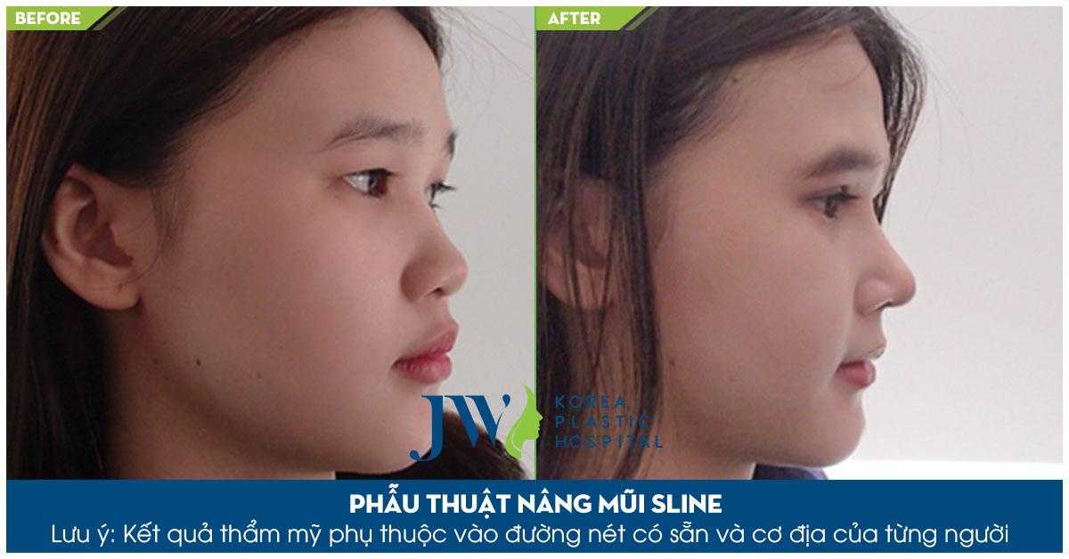 nang-mui-sline5 (1)