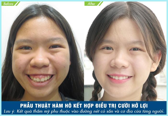 Phẫu thuật chữa cười hở lợi kết hợp chỉnh hàm hô_4