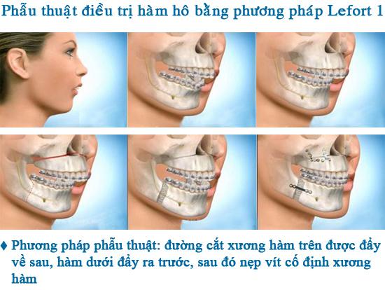 Cách làm răng hết hô_5