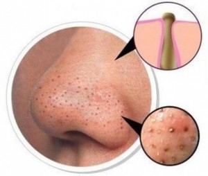 Blackheads-on-Nose-Pic