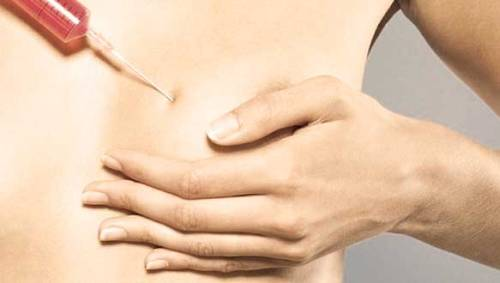 nâng-ngực-bằng-mỡ-tự-thân-3
