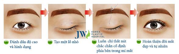 tạo-mắt-hai-mí-không-cần-phẫu-thuật-2