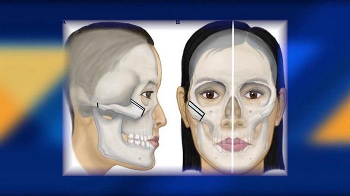 phẫu-thuật-hạ-gò-má-2