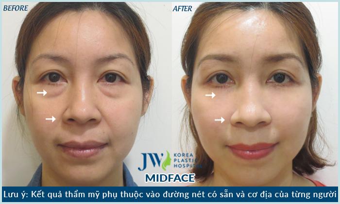 thẩm-mỹ-mắt-midface-3trong1-ở-đâu-chất-lượng-6