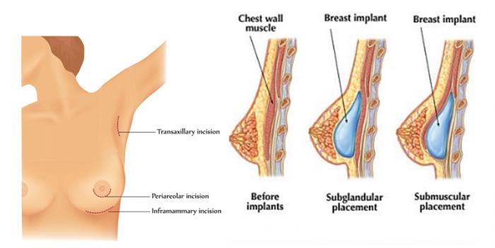 nâng-ngực-chảy-xệ-bằng-phương-pháp-nội-soi-2