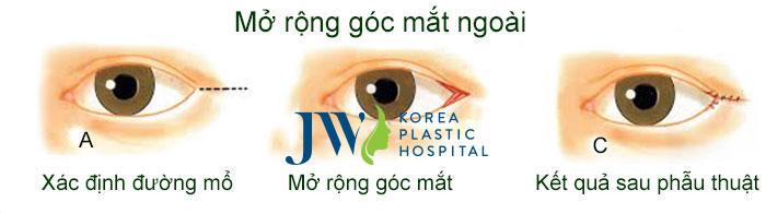 phẫu-thuật-mở-rộng-góc-mắt-ngoài-giá-bao-nhiêu-2