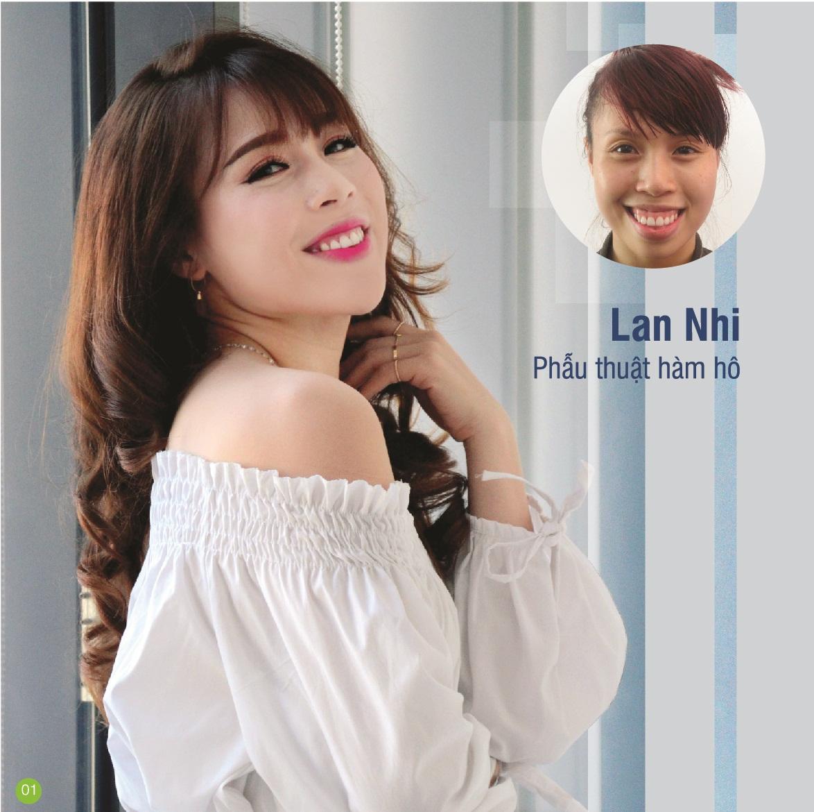 lan-nhi