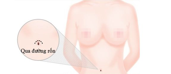 Nâng ngực nội soi qua đường rốn_1