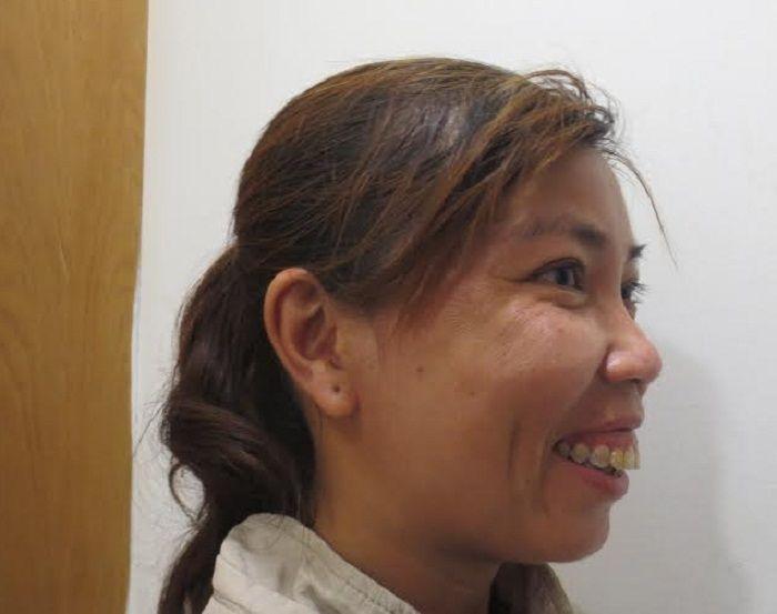 Hình ảnh chị Hồng trước đây với khiếm khuyết hàm hô của mình