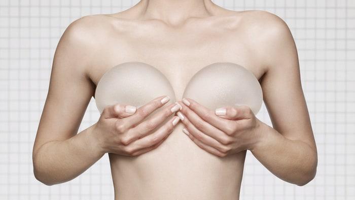 Nâng ngực sau bao lâu thì mềm_1
