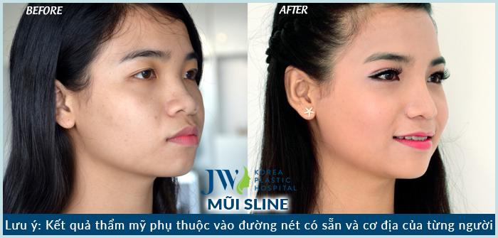 Nâng mũi có ảnh hưởng gì đến sức khỏe không?_7