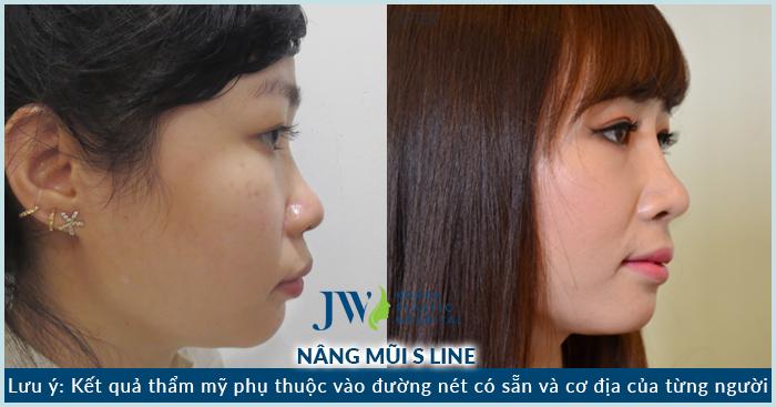 Nâng mũi có ảnh hưởng gì đến sức khỏe không?_8