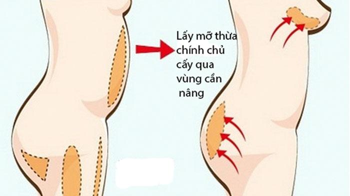 Cách nâng ngực an toàn nhất_6