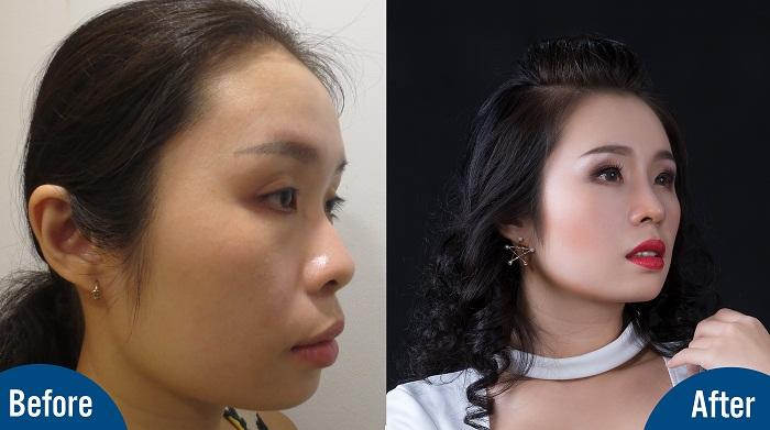 Sau khi cải thiện dáng mũi, hình ảnh Việt Trang cuốn hút hơn gấp nhiều lần