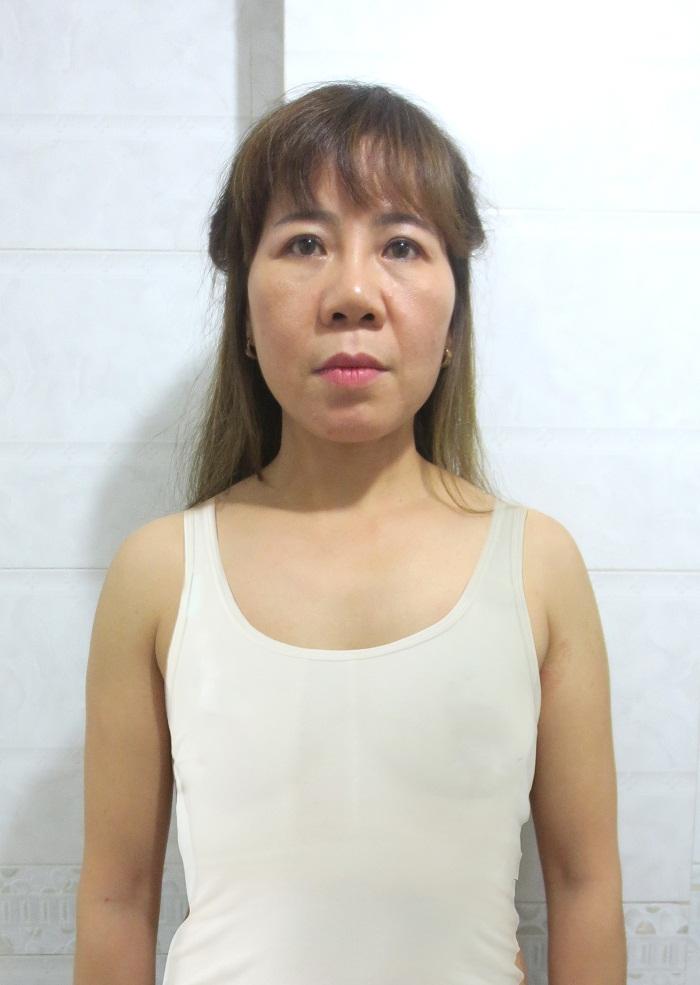 Bầu ngực chảy xệ sau 2 lần sinh con khiến chị Tuyết tự ti và mặc cảm