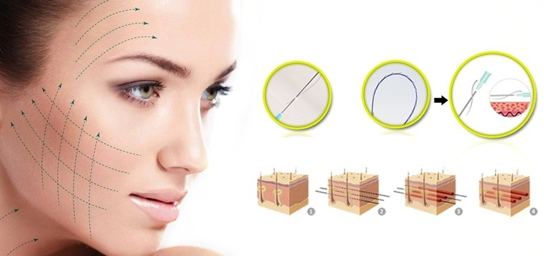 Hiểu đến  về căng da mặt bằng chỉ Ultral V Lift-hình 3