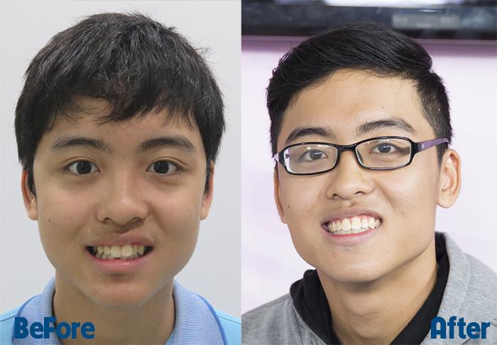 Sau 2 năm niềng răng Hạ Long đã tự tin khoe nụ cười rạng rỡ