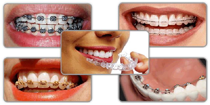 cách chữa hàm móm bằng niềng răng