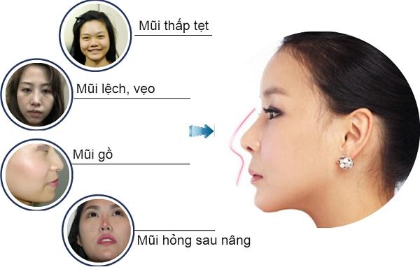 Nâng mũi theo công nghệ Hàn Quốc bằng phương pháp nào-hình 2