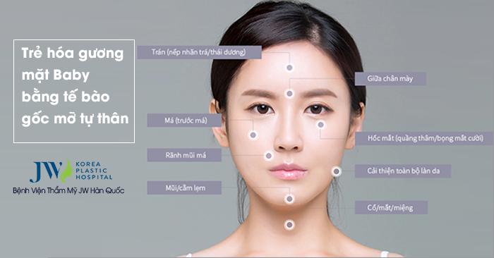 Các vùng cấy mỡ trên gương mặt