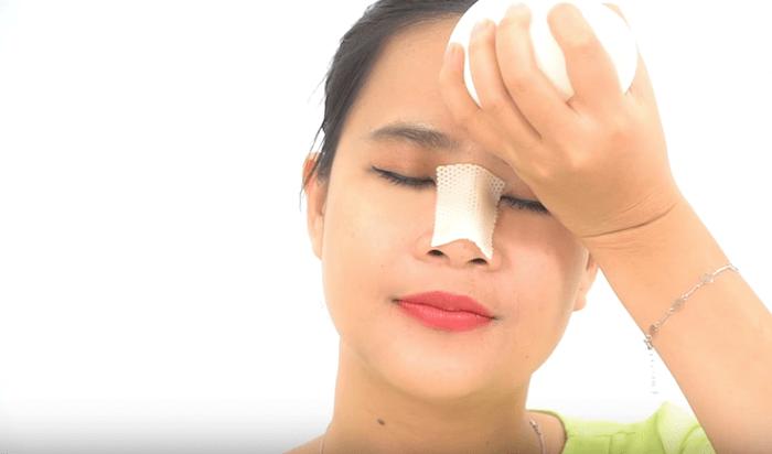 Nâng mũi bao lâu thì rửa mặt được_4