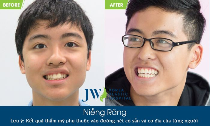 Cách nhận biết hô hàm và hô răng không phải ai cũng biết-hình 8