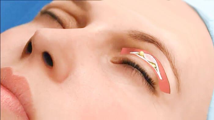 lấy mỡ mí mắt nội soi