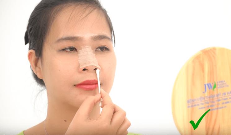 Nâng mũi bao lâu thì rửa mặt được_6