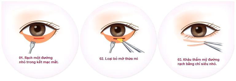 Lấy mỡ bọng mắt ở đâu tốt và an toàn - hình 5