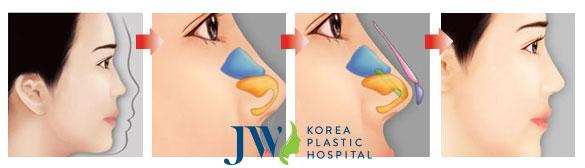 Nâng mũi bằng sụn tai có tốt không - hình 2