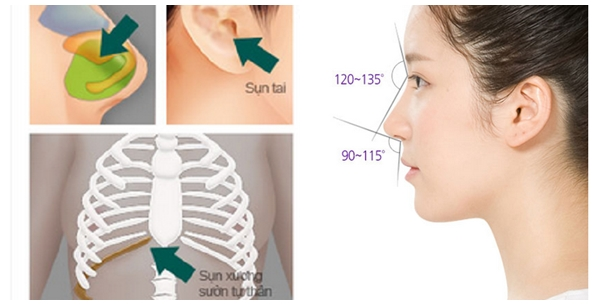 Có nên nâng mũi S Line sụn tự thân toàn bộ-hình 2