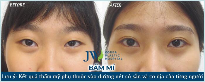 trang-bam-mi-mat-to-10072018-03