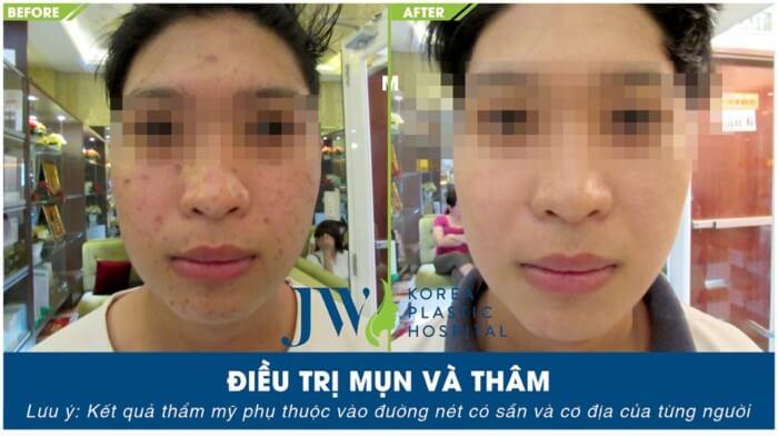 trang-cach-cham-soc-da-mun-dung-cach-04102018-01