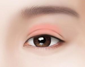cắt mí mắt bao lâu thì bình thường