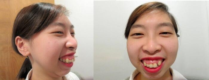 Tình trạng hàm hô và cười hở lợi