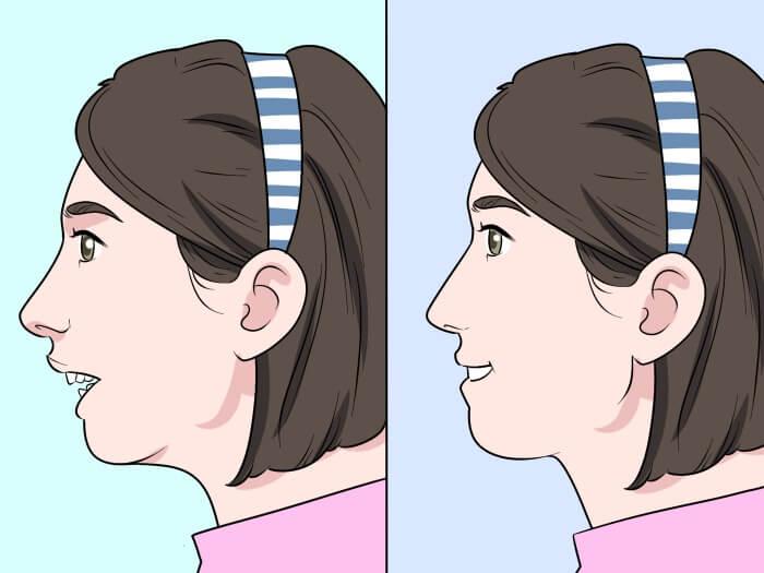 Nên niềng răng hay phẫu thuật hàm hô?