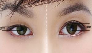 phẫu thuật hai mắt không đều